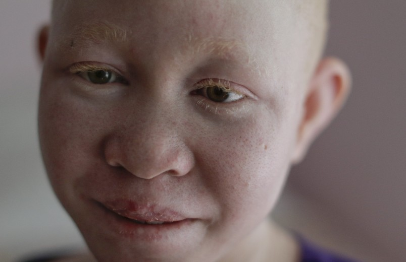 Pendo Noni takes a break in her room in New York on Wednesday, July 1, 2015. One out of every 1,400 citizens in Tanzania has albinism. Pendo and four other children also with albinism are in the U.S. to receive free surgery and prostheses at a hospital. (AP Photo/Julie Jacobson)