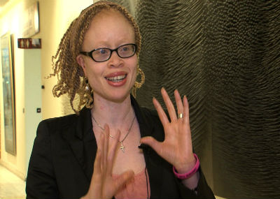 Nigerian UN expert calls for stronger protection of Africans with albinism