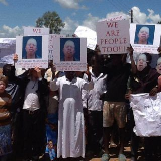 Amnesty calls on Malawi to ensure justice for albino victims