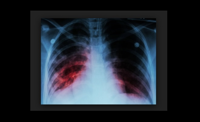 Studies show promising new treatment for latent TB