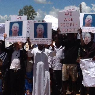 Malawi's albino deaths a concern as election season picks up pace