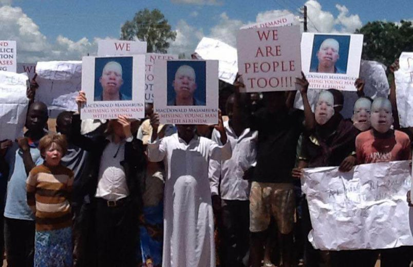 New concern for albino attacks as Malawi elections loom