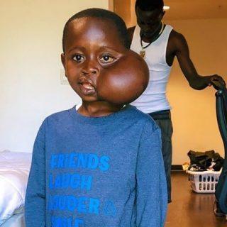 Heartbreaking turn as Kinshasa boy dies during U.S. surgery