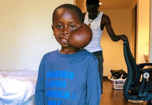 Heartbreaking turn as Kinshasa boy dies during U.S. surgery