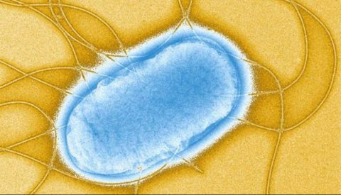 Researchers find Africa's salmonella infections more drug resistant